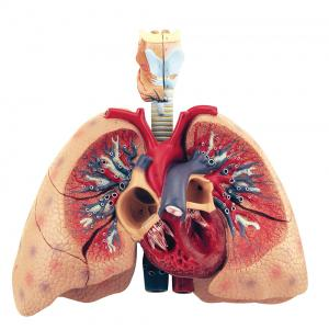 HUMAN LUNGS WITH HEART AND LARYNX, 5 PARTS