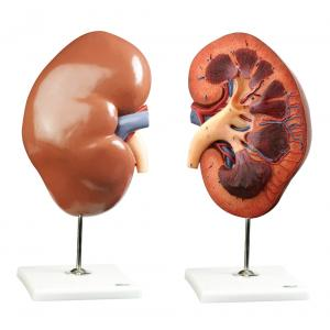 HUMAN KIDNEY, RIGHT